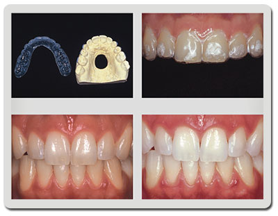 Estetica Clareamento Dental Dentista Sp