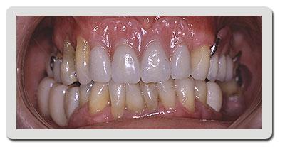 Reabilita��o Oral